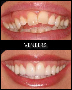 Veneers,Clip in Veneers,Clip on veneers